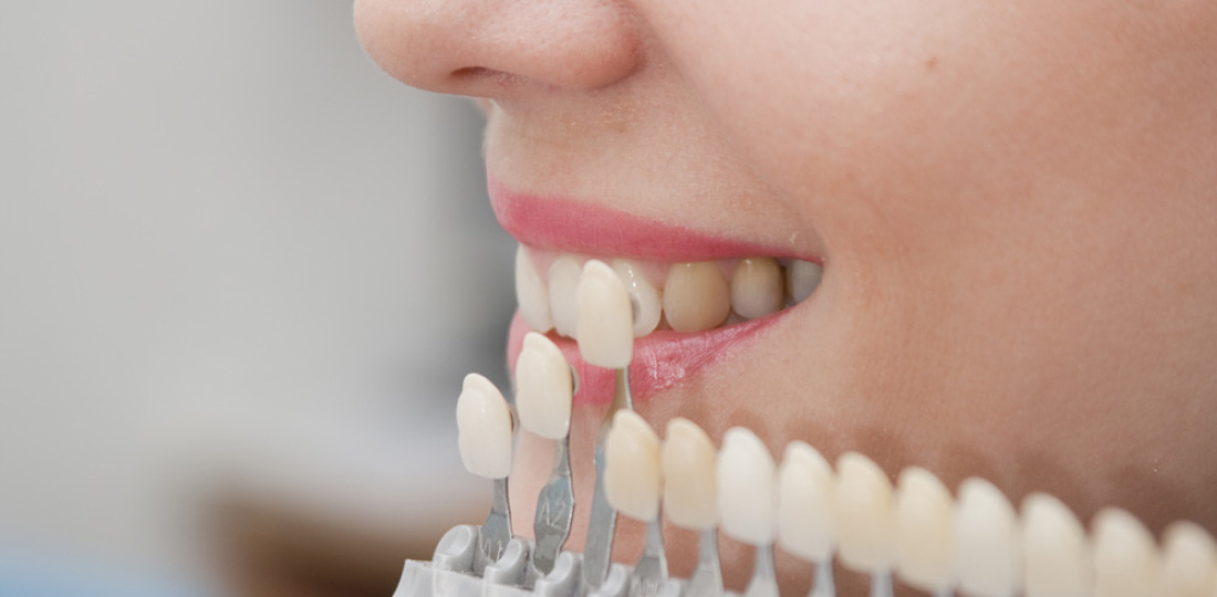 для кухни сопоставление зубов и родственников предпочитаете